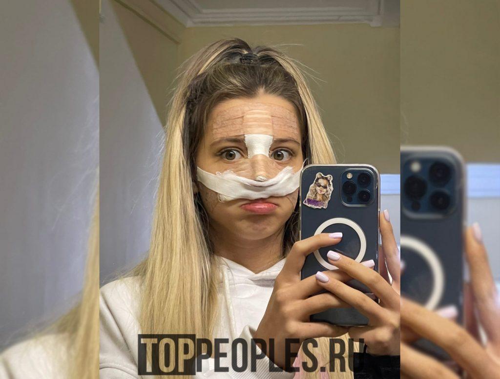 Юля Гаврилина операция на нос