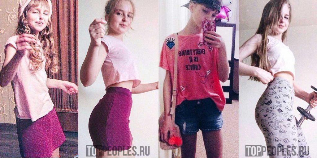 Tysya (Туся) анорексия до и после фото